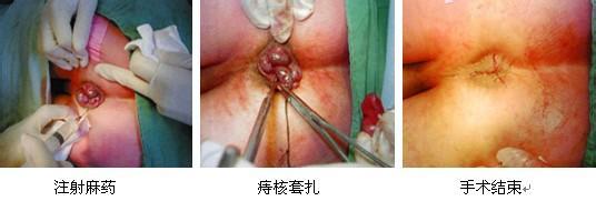 痔疮手术的步骤及图解